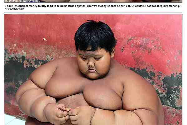 Ponen a dieta urgente al niño más obeso del mundo: su familia teme que muera