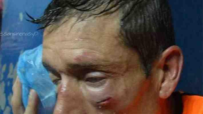 La brutal agresión a un árbitro en Argentina por la que los jueces se van a paro y no dirigirán este fin de semana