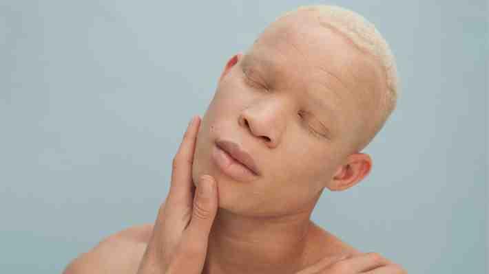 """""""A veces creo que estoy soñando"""": Joven albino que escapó de hechiceros africanos brilla en las pasarelas de Australia"""