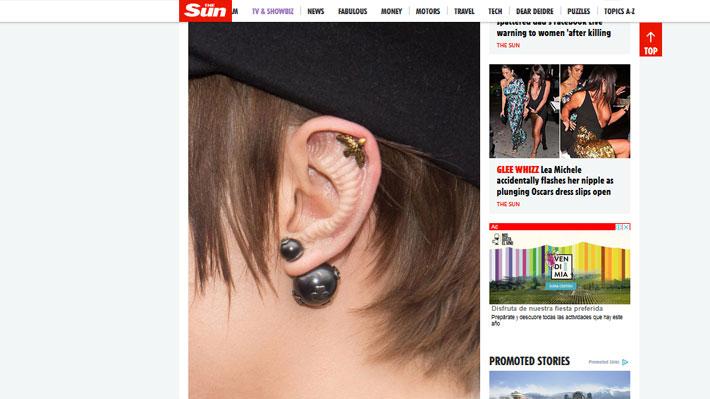 db1294320bd8c ... estas evidenciaban unos extraños bultos en una de sus orejas