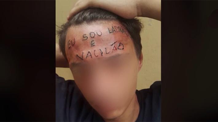 Reúnen Dinero Para Borrar Frase Soy Un Ladrón Que Tatuador