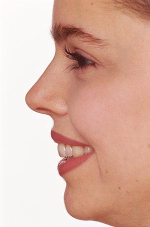grasa de los poros de la nariz