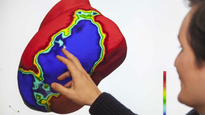 Ingenieros chilenos crean un modelo matemático para estudiar los infartos al corazón