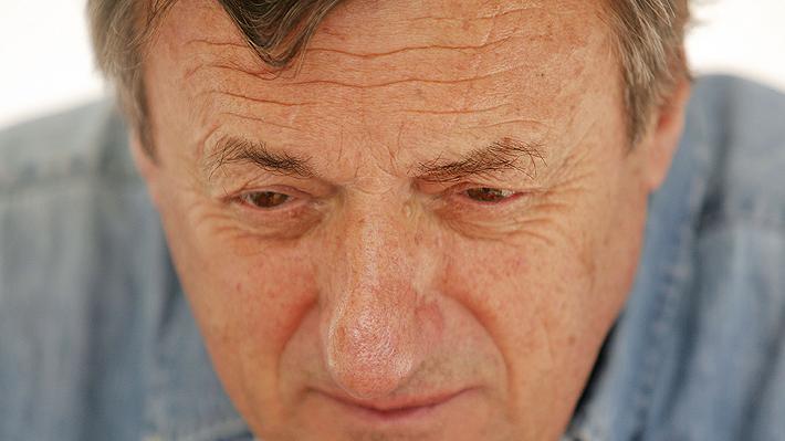 Aclaran que Luis María Bonini murió de un cáncer a la piel producto de mucha exposición al sol