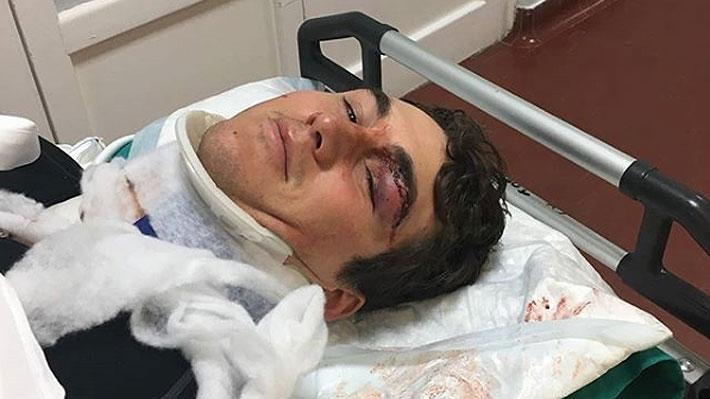 Esquiador chileno sufre grave accidente y se pone en duda su participación en los JJ.OO. de Invierno 2018