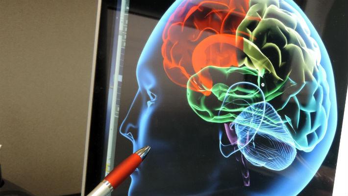 """La dopamina ayuda a corregir los """"errores"""" en el cerebro ante situaciones inesperadas"""