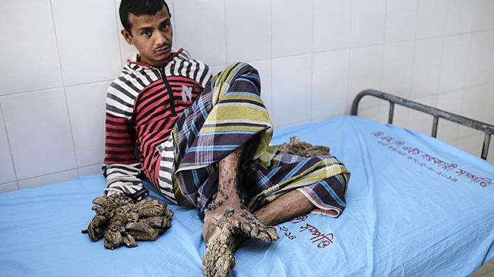 """""""Hombre árbol"""" abandona su tratamiento médico y asegura que recibió insultos por parte de enfermeras"""