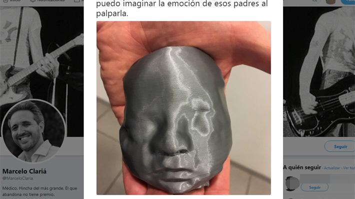 Argentina: Regalaron ecografía impresa en 3D a pareja ciega para que pudiera conocer el rostro de su hija