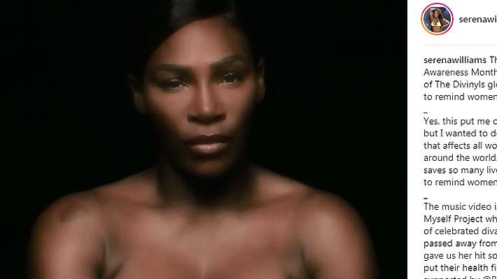 Serena Williams se une a campaña de prevención del cáncer de mama cantando en topless