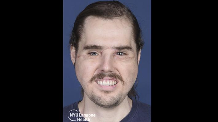 """Hombre con exitoso trasplante de rostro agradece tener una segunda oportunidad: """"Puedo sonreír"""""""