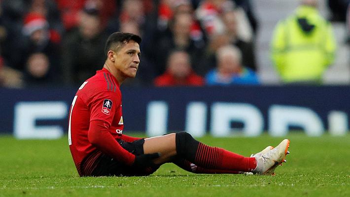 Alexis no se habría recuperado de su lesión y quedaría fuera de la convocatoria del United ante el Tottenham