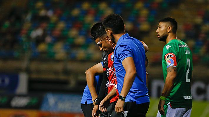 Primera polémica del Torneo: El duelo Audax-Antofagasta se suspendió por agresión a un jugador y luego fue reanudado