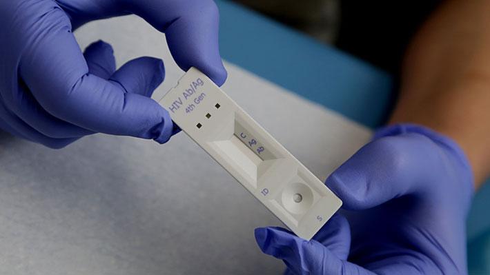 """VIH en Chile: 57% de los jóvenes se realizó el test y el 11% se sintió """"incómodo"""" al someterse al examen"""