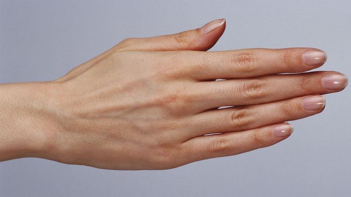 Dermatóloga de Clínica Mayo entrega consejos para fortalecer las uñas quebradizas