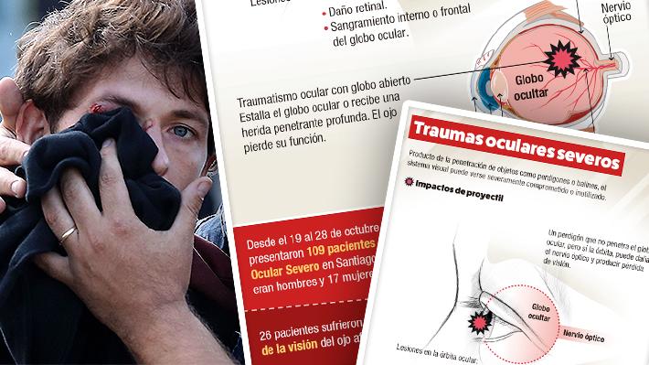 El balance de los traumas oculares en manifestaciones: 26 pacientes han perdido la visión de un ojo en Santiago