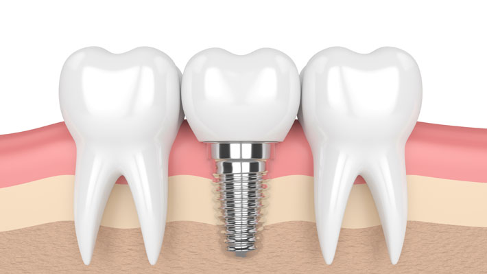 Implantes dentales: Especialista aclara dudas y mitos sobre esta alternativa