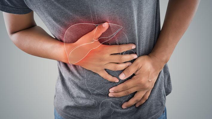 Aumenta hígado graso no alcohólico: Especialista aconsejó cómo evitar que evolucione a cirrosis