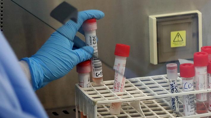 """Fallecidos """"atribuibles a coronavirus"""", cuarentena y casos activos: Los cambios metodológicos que anunció el Minsal"""