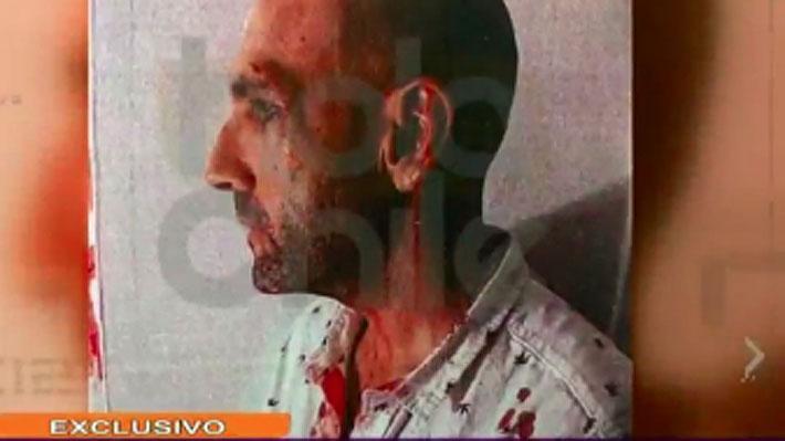 Revelan imágenes de Sergio Jadue ensangrentado tras supuesta pelea en Miami